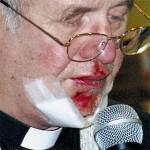 Ksiądz Ksawery Wilczyński już kilka dni po napadzie uczestniczył w uroczystościach w SP Koszuty. Na twarzy jednak ciągle widać ślady pobicia.